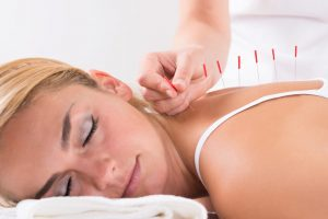 Acupuncture - The Content Splash from Sally McCaughrin